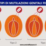 Quanti tipi di Mutilazione Genitale Femminile?